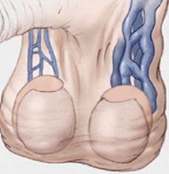 varicocele1